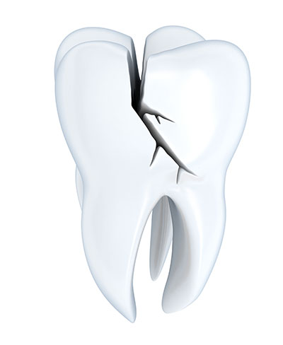 Ignoring a Broken Tooth Can Be Dangerous to Your Oral Health